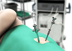 Hip Arthroscopy Surgery New York | Hip Surgery Long Island